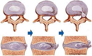 Cauze frecvente de hernie de disc intervertebral