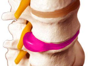 Hernia pe lombar și tratamentul său