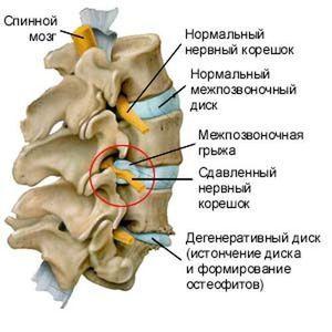 Cauze posibile ale herniei vertebrale