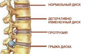 Diagnosticul herniei vertebrale