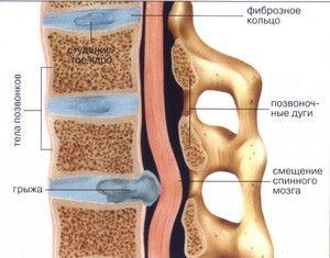 Ce cauzează o hernie lombară