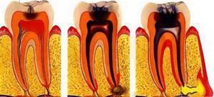 Tipuri de pulpită-gangrenă