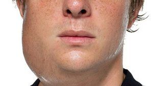 Cauzele inflamației glandei salivare