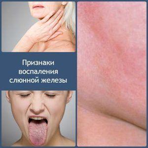 Metoda de tratament a inflamației glandei salivare