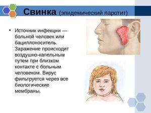 Paratita epidemică la copii și adulți