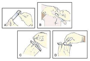 Cum să luați răzuirea pentru enterobioză