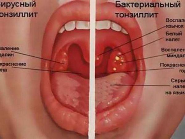 Tipuri de dureri de gât și simptome