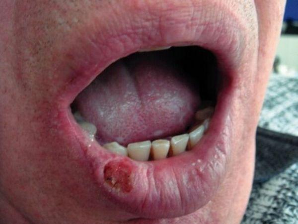 Heilit Manganotti: Simptome
