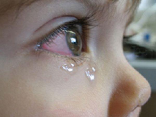 Lacrimile ochilor