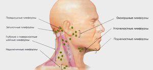 Cum să tratați ganglionii limfatici inflamați