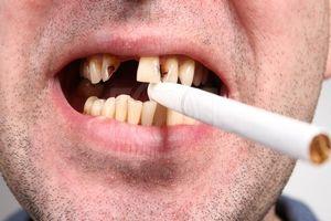 Bad obiceiuri și dinți