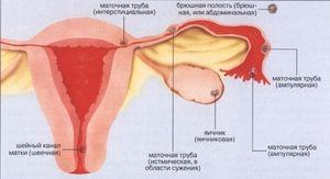 Cum se determină o sarcină ectopică