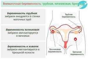 Definiția ectopic pregnancy