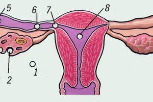 Cum apare o sarcină ectopică?