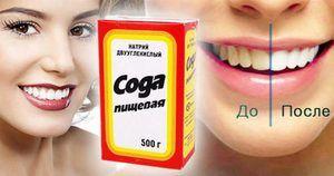 Ce înseamnă să albifi dinții?