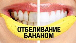 Cum să vă albiți dinții acasă