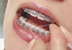 Instrucțiuni pentru utilizarea aței dentare în timpul coastelor