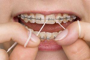 Descrierea procedurii de folosire a atei dentare în timpul brațelor