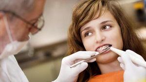 Sfaturi dentiști îngrijire orală pentru bretele