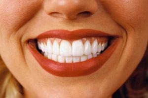 Zâmbet alb zâmbet