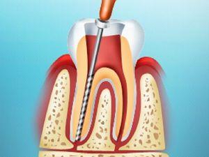 Procedura de îndepărtare a nervului dentar
