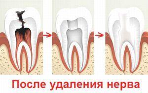 Cum se îndepărtează nervul dentar