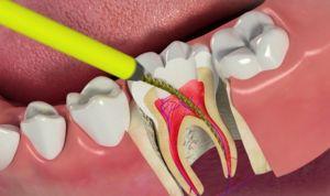 Eliminarea nervului dentar