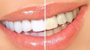 Ce metode de albire a dintilor