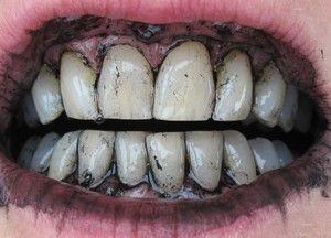 Cum să vă albiți dinții