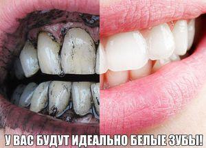 Cum să vă păstrați dinții albi pentru o lungă perioadă de timp