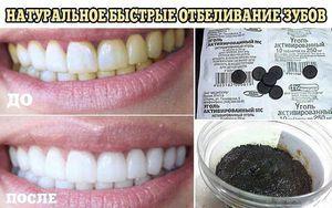 Metode tradiționale de albire a dinților