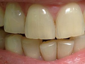 Crăpăturile dinții - Prezentare generală