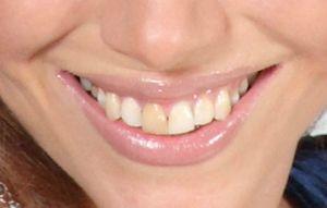 Cauze de dinte îngălbenite