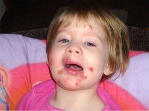 Probleme de piele la copil