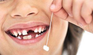 Cum să îndepărtați cu ușurință un dinte copil de la un copil