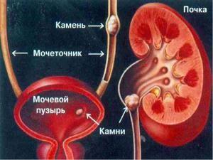 Descrierea medicală a urolitiazei