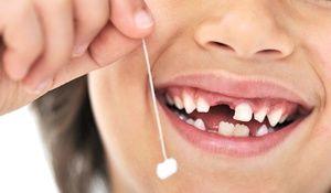 Schimbarea dinților de lapte la cei indigeni