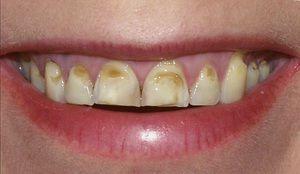 Consecințe negative pentru dinți de a mânca alimente dăunătoare