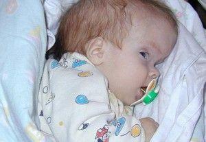 Boala paraliziei cerebrale infantile