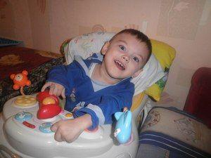 Forma hiperkinetică a paraliziei cerebrale infantile