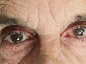 Cataracta la vârstnici