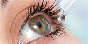 Picături oculare în tratamentul cataractei