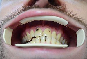 carii dinților din față