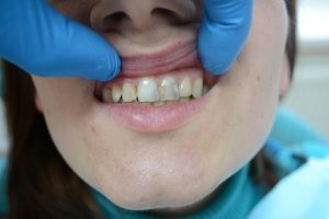 Tratamentul cariilor dentare