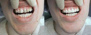 Umplerea dinților