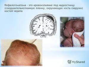 Simptomele cefalohematomului
