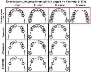 Clasificarea defectelor dentiției