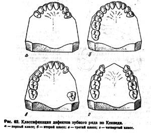 Clasificarea dentiției