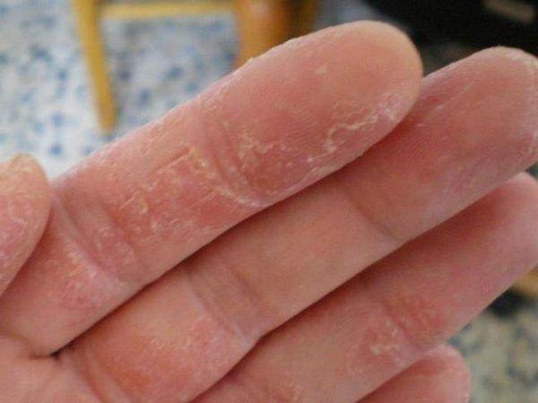 Tratamentul bolilor de piele