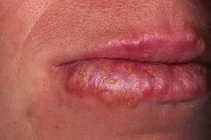 Cauze ale bolilor de piele